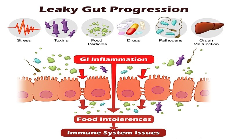 Leaky Gut with Dr. Cheryl Burdette from Dunwoody Labs